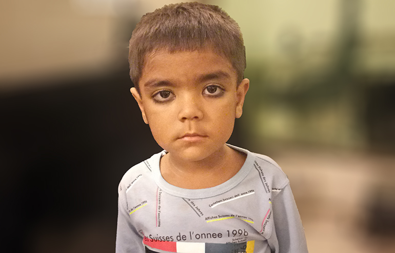 Donate Abdul Wahab For His Duhamel Surgery