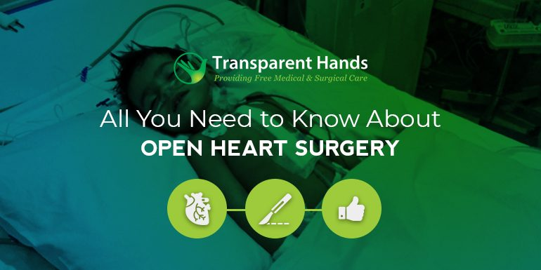 All You Need to Know About Open Heart Surgery